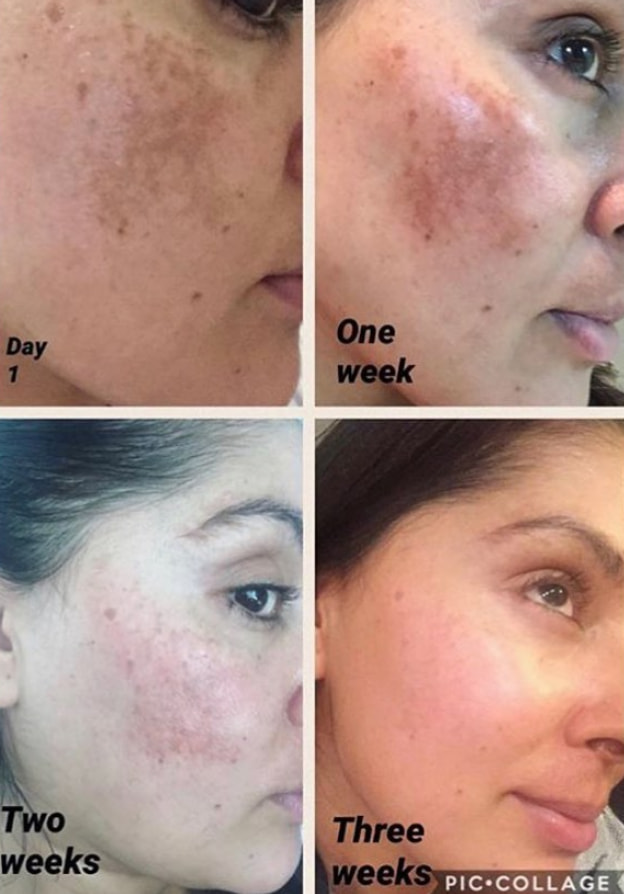 Before and After Acne Scars