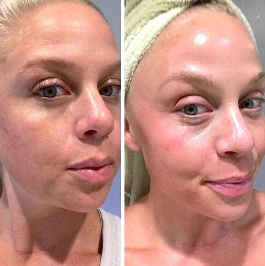 AZELAIC ACID: BEFORE AND AFTER 2